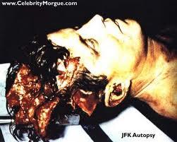 JFK morto