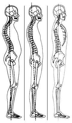 postura1